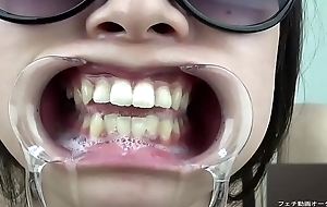 A woman shows her gums increased by sputs saliva